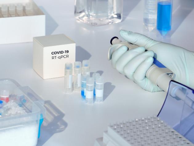 Entenda como são realizados os testes para Covid-19 na UFJF