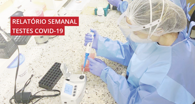 Confira os números de exames de Covid-19 realizados nos laboratórios da UFJF